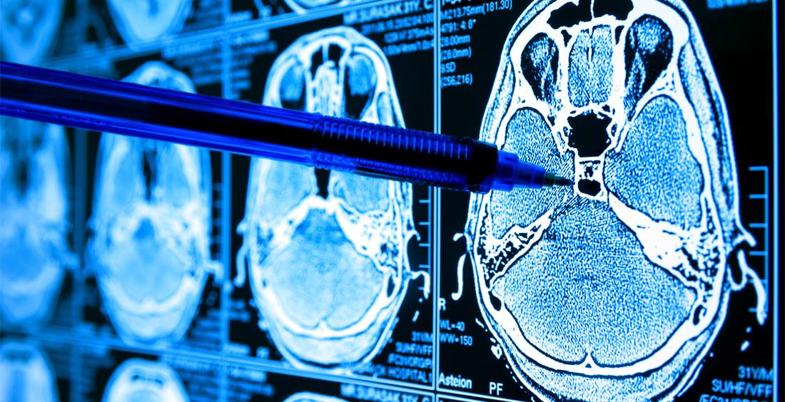 USO DE IA en MEDICINA para fines de diagnóstico y tratamiento